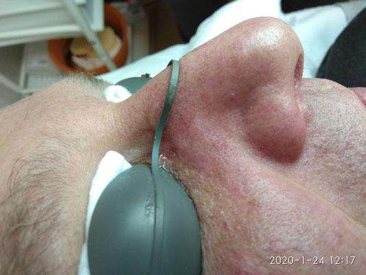 Couperose Behandlung NACHER
