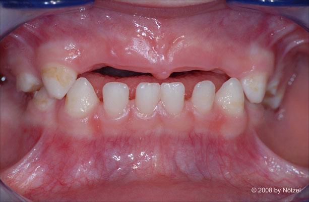 Situation eines Kleinkindes nach Zahnverlust