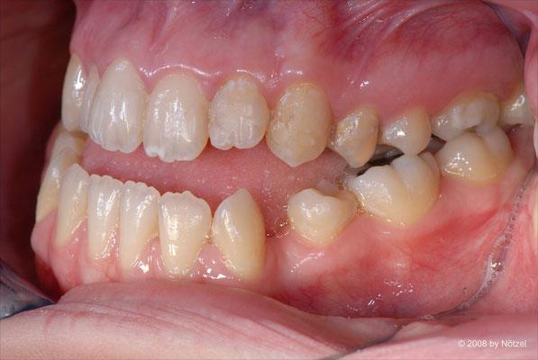 Fotostatus einer Patientin: Seitenansicht links