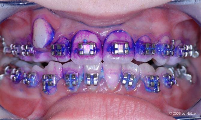 Darstellung von Zahnbeläge