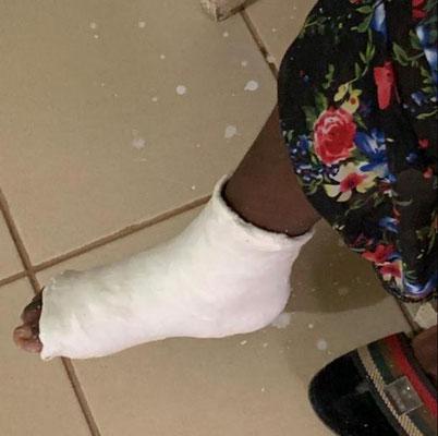 Die erste Patientin für unser neues Röntgengerät kam mit gebrochenem Fuß aus 42 km Entfernung. Danke für Eure Hilfe!