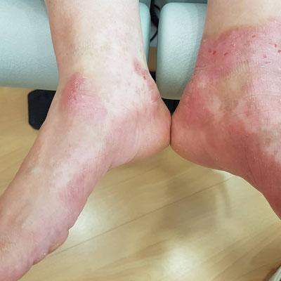 Nach Behandlung mit coldPlasma und Jordan Linie