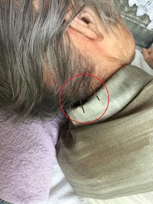 テラヘルツ鍼
