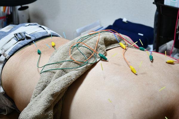 低周波+鍼治療