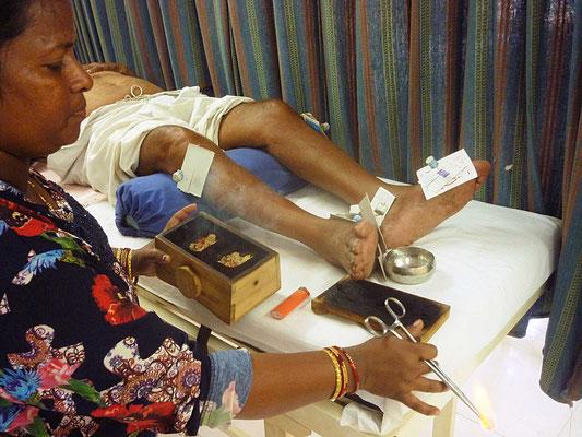 Unterstütztes Projekt Barefoot Acupuncturists Mumbai Indien Akupunktur und Moxa Behandlung