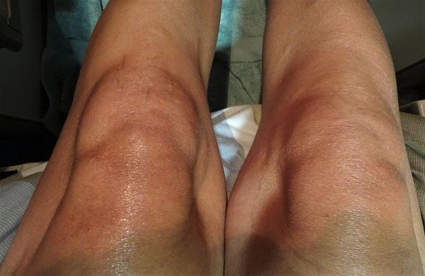 Ugos geschwollene Knie.