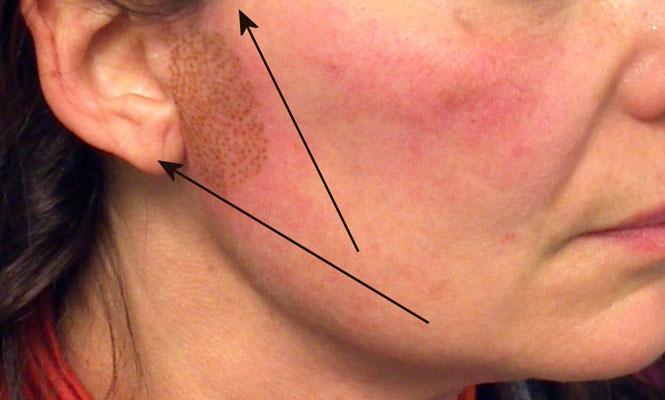 Minilifting terzo inferiore viso: le frecce indicano il lifting