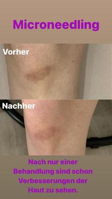 """Microneedling, Hautnarbe an Knie, Vergleich """"vorher - nachher"""""""