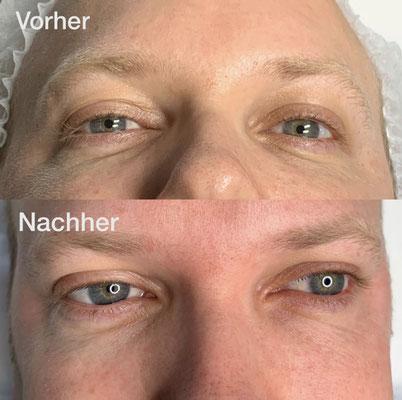 """Microneedling, Augenpartie, Vergleich """"vorher - nachher"""""""