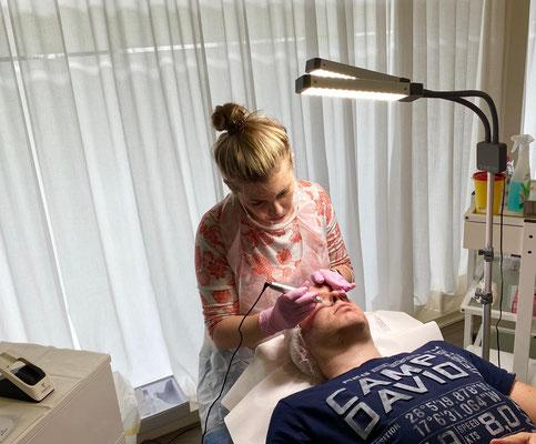 Microneedling, Behandlung