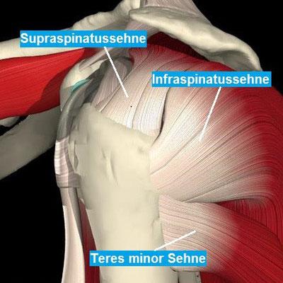 Seitliche Ansicht der Schulter mit der Supraspinatus-, Infraspinatus- und Teres minor Sehne (Teile der Rotatorenmanschette)