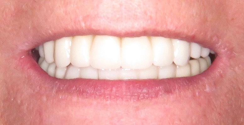 Das Lippenbild nach der Behandlung