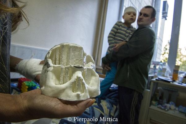 Vitali, 7 anni, soffre di una malformazione congenita chiamata craniostosi. La madre sta mostrando lo stampo del cranio di Vitali. Lo stampo viene utilizzato per costruire la piastra di titanio, che aiuterà a sviluppare la crescita del cranio di Vitali