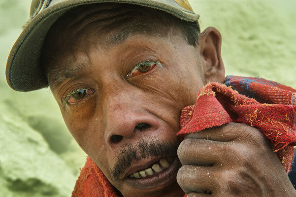 Arsito, lives in Kebun dadap village, gets serious eyes irritation.  An emission of fumarole gases which contain toxic elements are harmful to eyes, it is stronger than tear gas.