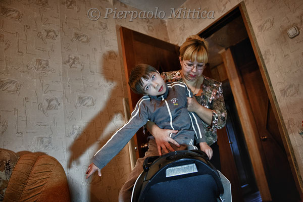 Timotey is 12 years old and suffers from infantile cerebral paralysis. Kysthym