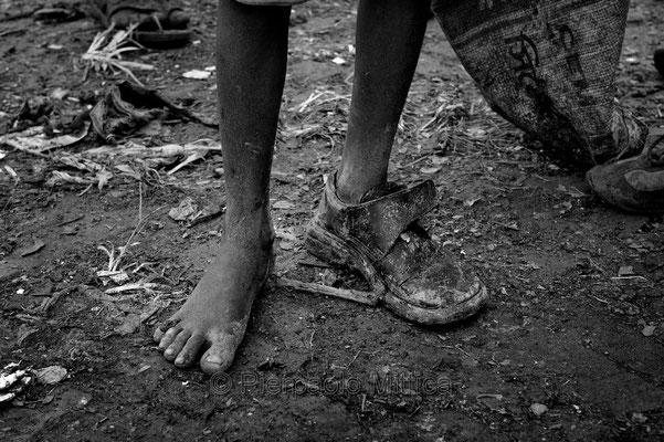 Tokai trying to protect his feet, demra Matoel dump, Dhaka