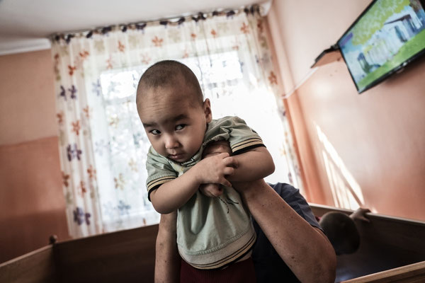 Akhmetov Emirzhan 2 years old, cerebral palsy, tetraparesis, atrophy of the optic nerve. Orphanage for handicapped children, Semey, Kazakhstan