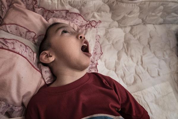 Erlan Arapat 4 year old, cerebral palsy, microcephaly. Orphanage for handicapped children, Semey, Kazakhstan.
