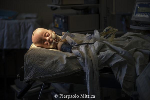 Anna, 6 mesi, soffre di idrocefalia, una delle più comuni patologie causate da accumulo di particelle radioattive nel feto. Qui è in attesa della chirurgia per ridurre il liquor all'interno della scatola cranica. Clinica Pediatrica di Neurochirurgia, Kiev