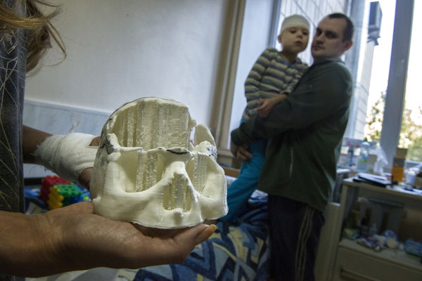 Vitali, 7 years old, he suffers from a congenital malformation called craniostenosis. Her mother is showing the mold of Vitali's skull that is used to build the titanium plate, to develop the growth of Vitali. Pediatric clinic of neurosurgery, Kiev.