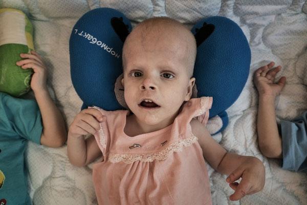 Musagalieva Zhanbota, 3 years old, Cerebral palsy. Tetroparesis. Orphanage for handicapped children, Semey