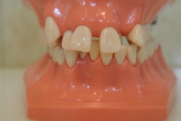 たかす歯科クリニック矯正