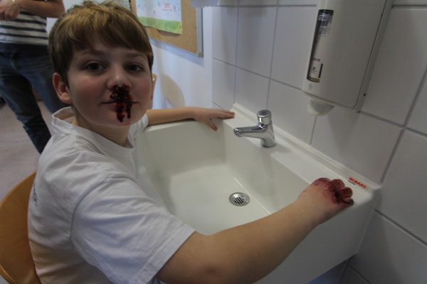 Nasenbluten nach einer Schlägerei
