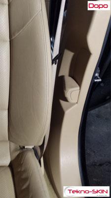 RIPARAZIONE FIANCHETTO PORSCHE PANAMERA Riparazione da Buco sulla spallina Alta per Gancio Cintura Sicurezza. Riparazione da Sfregamento sulla spallina Bassa. - Dopo