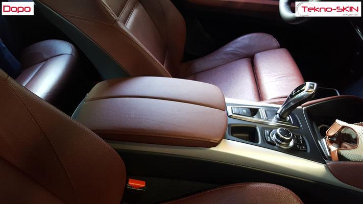 RISTRUTTURAZIONE BRACCIOLO CENTRALE BMW X5  - Restauro Superficie Consumata nella zona Appoggio Lato Guida  - Colorazione a campione - Dopo