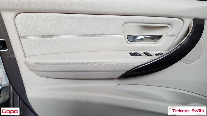 PANNELLO BMW 320d - Ristrutturazione Superficie Bracciolo - Dopo