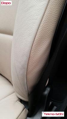 RISTRUTTURAZIONE SPALLINE SEDILI PELLE BMW 320 Ristrutturazione e Colorazione Spalline Esterne sedili Lato Guida e Passeggero - Dopo