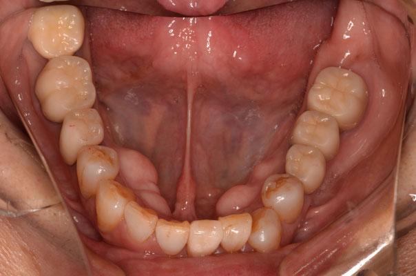 下顎の奥歯は部分矯正とインプラントで治療しています。