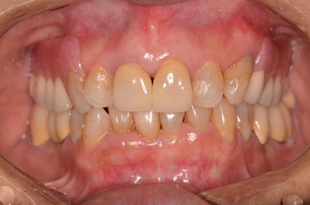ノンクラスプデンチャー(バネのない入れ歯)上の両奥歯に入っています。