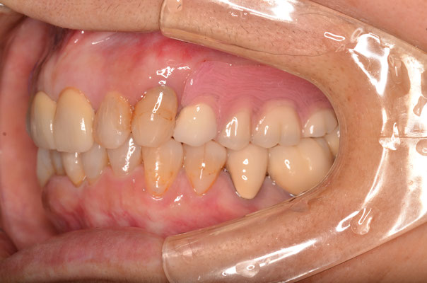 ノンクラスプデンチャー(バネのない入れ歯)上の奥歯に入っています。