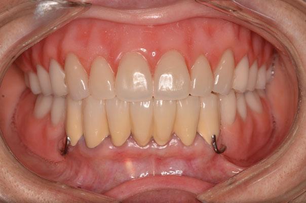 上顎には金属床義歯(入れ歯)下顎にも金属床の部分床義歯(入れ歯)
