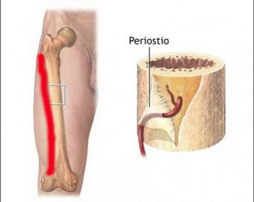 Periostiris