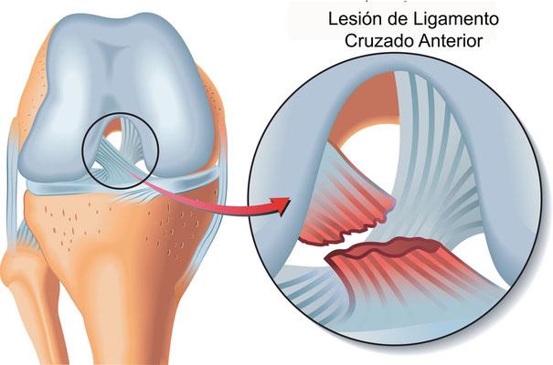 Lesiones de ligamentos