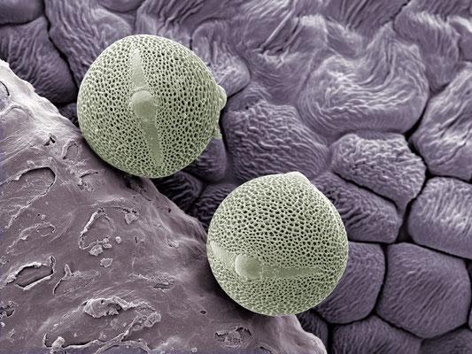 Wir zwei - Pollen von Cistus clusii - Druck auf Alu, 80x60 cm, 2015, H. Halbritter - VERKAUFT