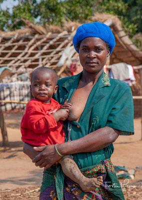 Malawi hatte im Jahr 2018 etwa 18 Millionen Einwohner, die Hauptstadt ist Lilongwe.