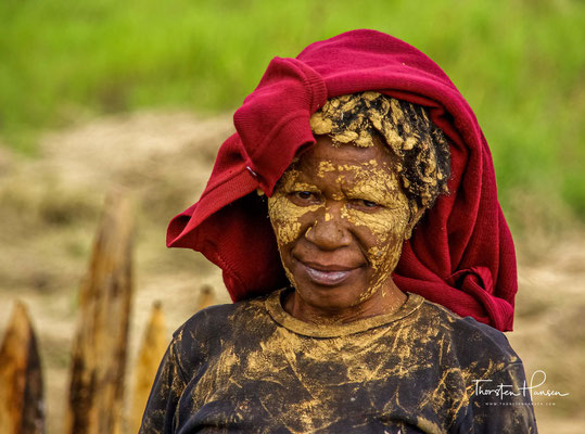 Zum Zeichen der Trauer, trägt eine trauernde Dani Frau eine gelbe Paste im Gesicht und am Körper. Traditionell wird im Trauerfall, ein Finger mit einer Steinaxt abgetrennt