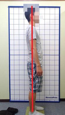 ギックリ腰 腰痛 姿勢改善 治療後