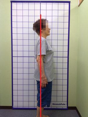 高齢者 健康寿命 姿勢検査