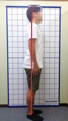 ぽっこりお腹 骨盤前傾 姿勢改善前