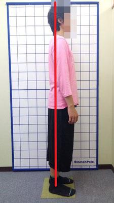 ギックリ腰 腰痛 姿勢改善 治療前