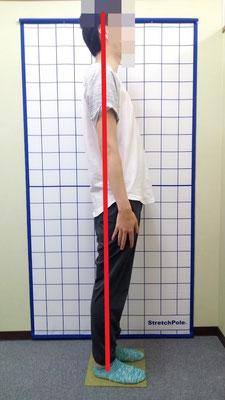 背部痛 臀部痛 腰痛 膝痛 猫背 姿勢改善 治療後