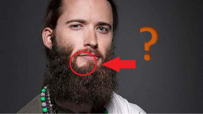 por que no me sirve el minoxidil para barba