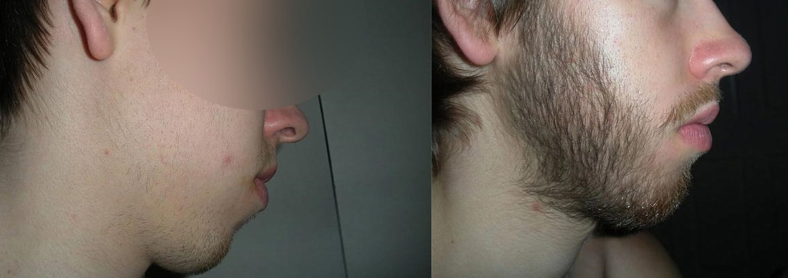 me puedo afeitar usando minoxidil