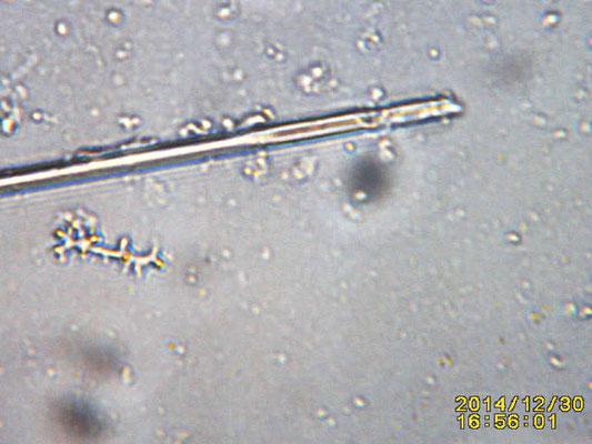 Negombata corticata, spicules et microsclères