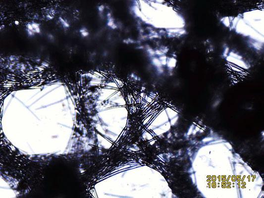 Xestospongia testudinaria  structure