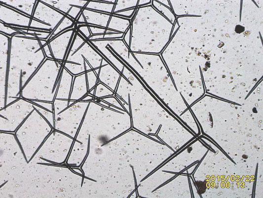 Spicules, triactine pseudo sagittale